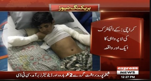 Boy's arms cut off as 11KV wire falls on him