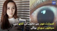 Woman has 500 holes in her eyes due to her SmartPhone