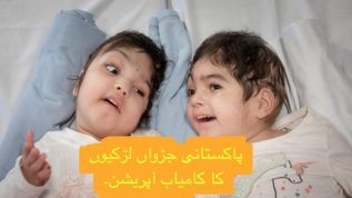 2 year old twins separated by operation